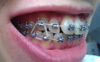 Берут ли в армию, если в зубах вставлены брекеты?