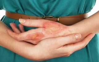 Берут ли в армию с дерматитом