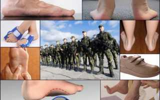Берут ли в армию с продольным плоскостопием