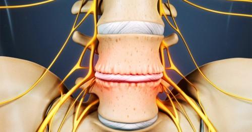 Межпозвоночная форма остеохондроза