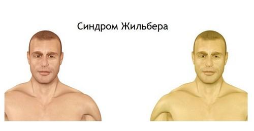 Основным симптомом является желтый цвет кожного покрова