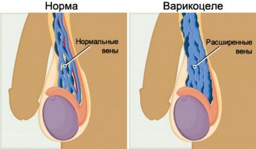 Данная патология трактуется как расширение вен семенного канатика и яичка