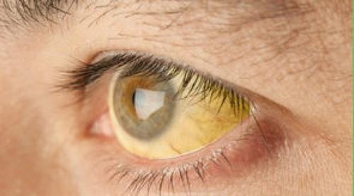Обеспокоенность вызывает желтый цвет кожи, глаз
