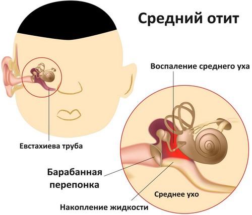 Средний отит