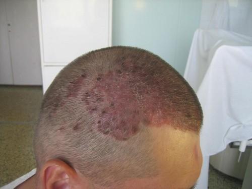 Псориаз волосистой части