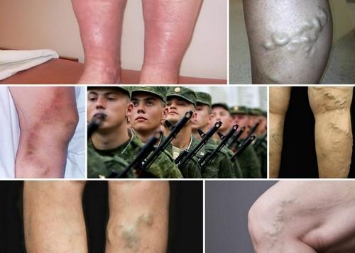 Отечность ног, возникающая после физического напряжения