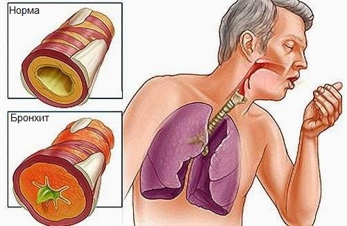 Хронические заболевания бронхолегочного аппарата