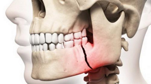 Перелом черепа, носа, челюсти и лицевых костей