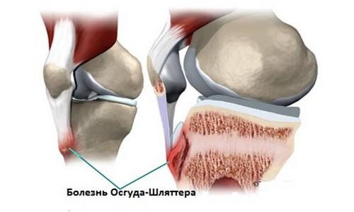 Ключевым условием формирования болезни всегда выступает травмирование материй скелет