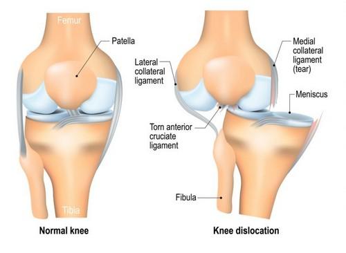 Нестабильность коленного сустава