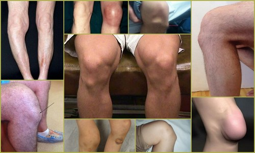 Размещение болевых ощущений в зоне колена