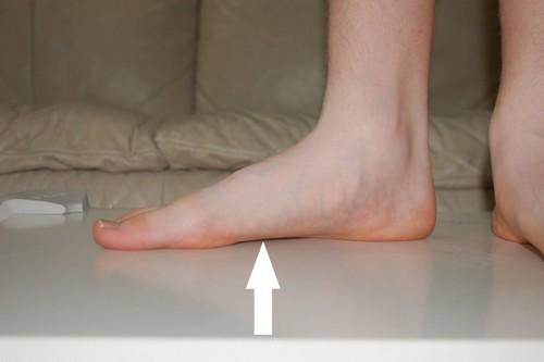 Вторая степень подобного нарушения стопы определяется сильным уплощением