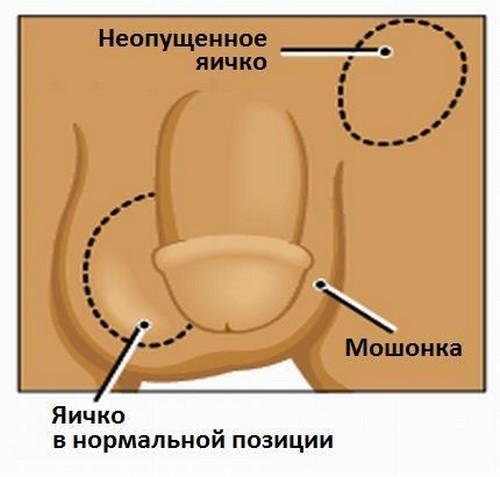Монорхизм – это отсутствие одного яичка у мужчины
