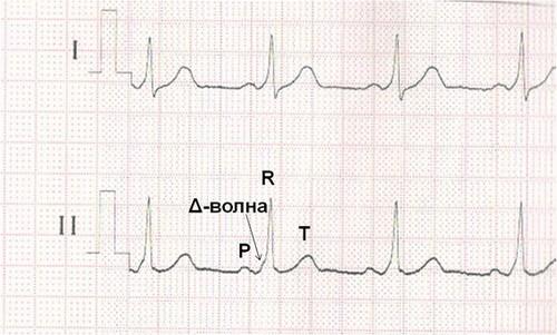 Как выглядит кардиограмма при WPW