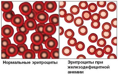 Одна из форм течения анемии – железодефицитная
