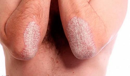 Псориаз, атопический дерматит