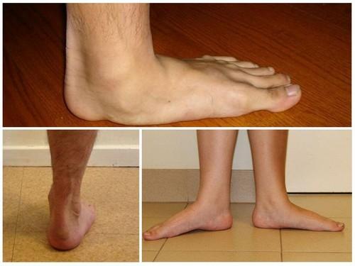 Ноги с плоскостопием